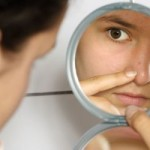Masalah Muka Berjerawat Bagi Remaja Dan Penyelesaiannya